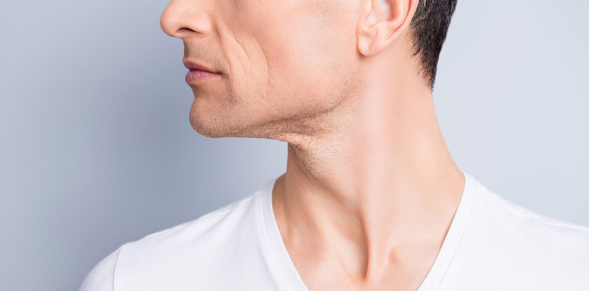 skin treatment deep fractionated resurfacing