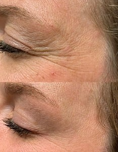 Botox Injection for Crows Feet. Botox Cosmetic Before and After. Botox Treatment In Regina