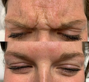 Botox Injection in the Forehead. Botox Cosmetic Before and After. Botox Treatment In Regina