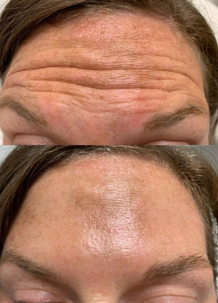 Botox-Forehead