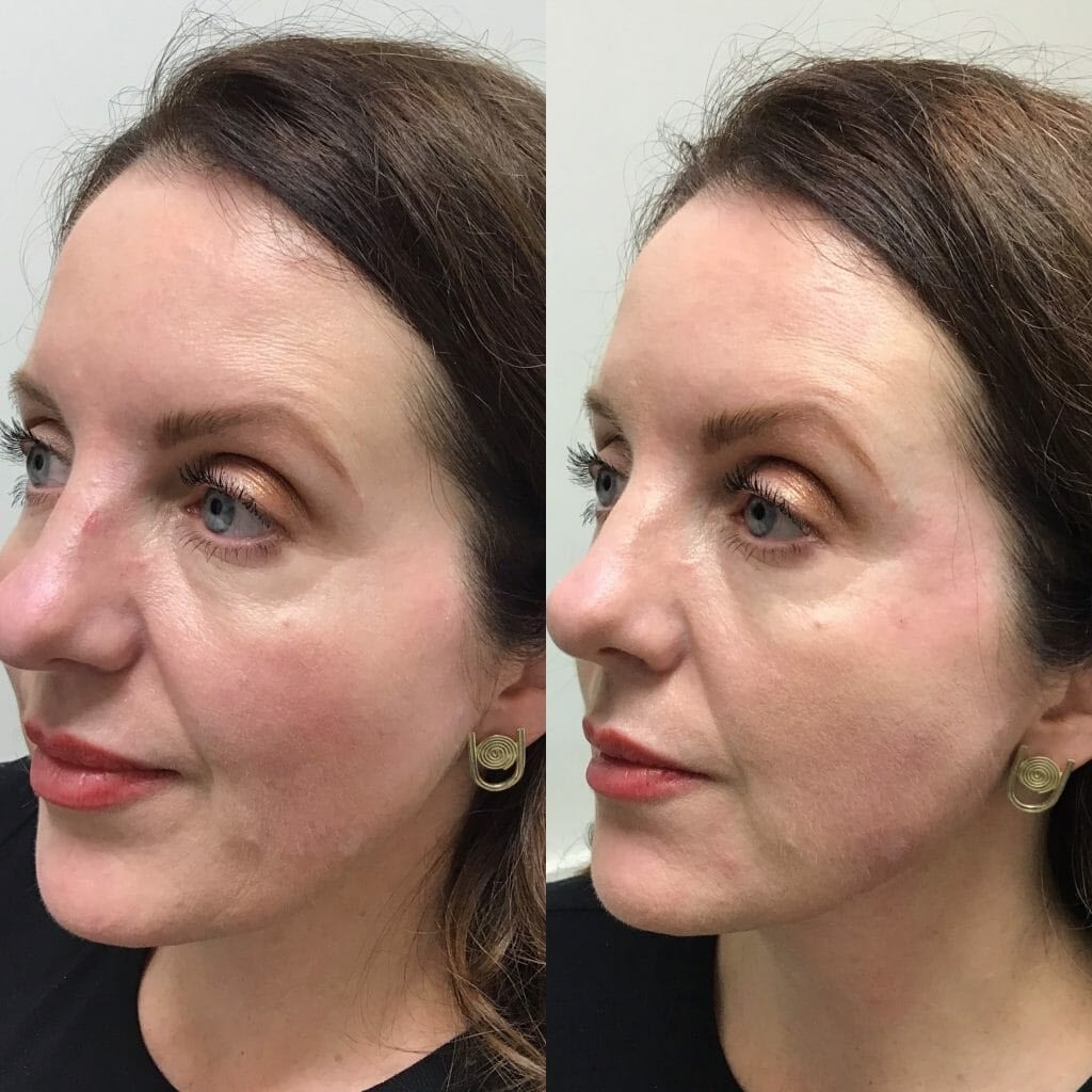Jawline-Cheek-and-Temple-Fillers