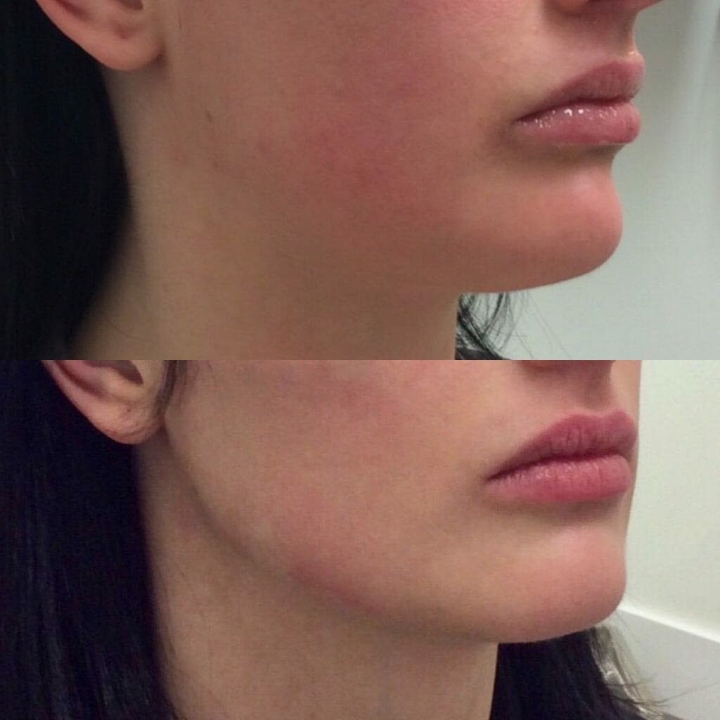 Jawline-and-Cheek-Filler