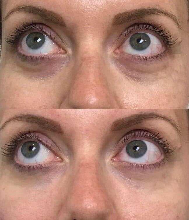Under-Eye-Filler